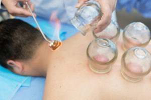Person lying on stomach receives cupping treatment from massage therapist